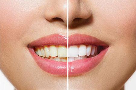 Tandblegning giver hvide tænder og smukke smil!