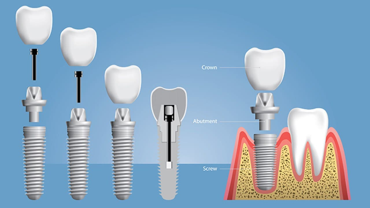 Procedure ved implantater