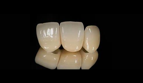 3-leddet tandbro