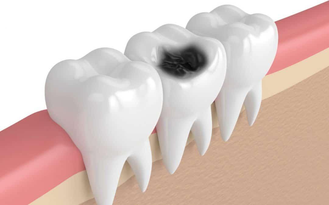 Caries - huller i tænderne