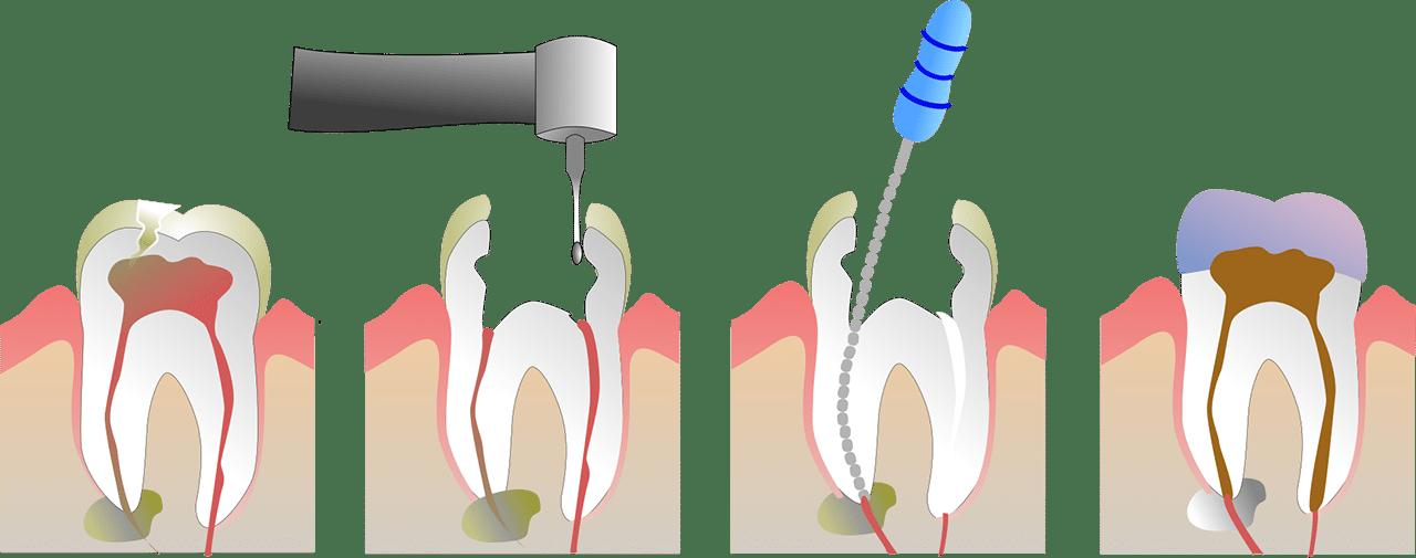 Procedure for rodbehandling