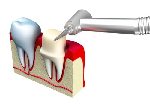Præparering af tandkrone
