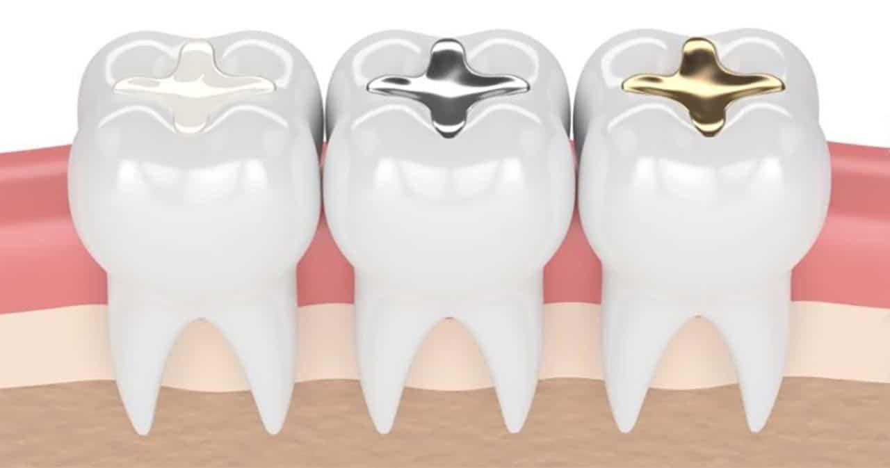 Tandfyldninger af plast, sølv og guld
