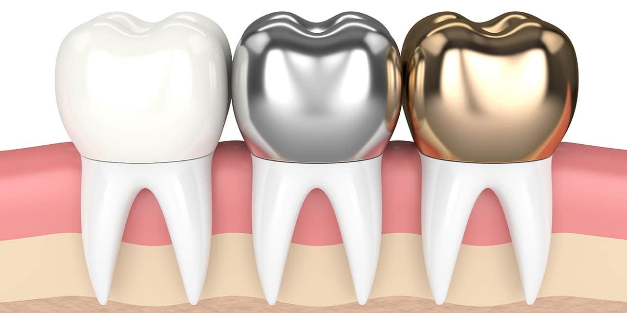 Tandkroner af plast, metalkeramik og guld