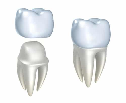 Tandkroner og tand med krone