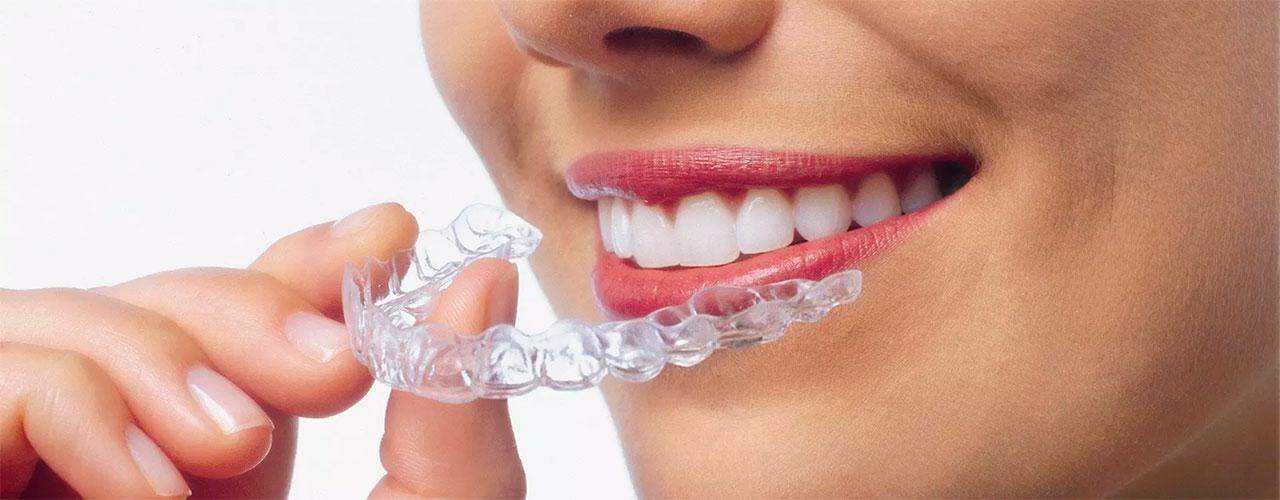 Tandretning med Invisalign