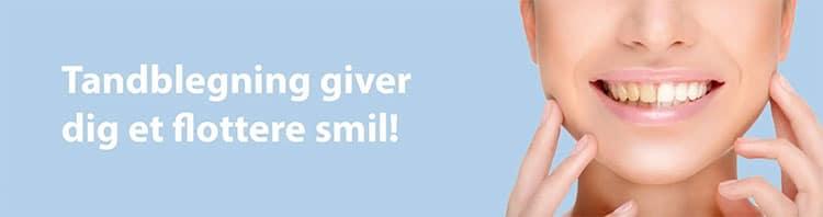 Tandblegning giver flotte smil
