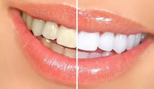 Tandblegning pris