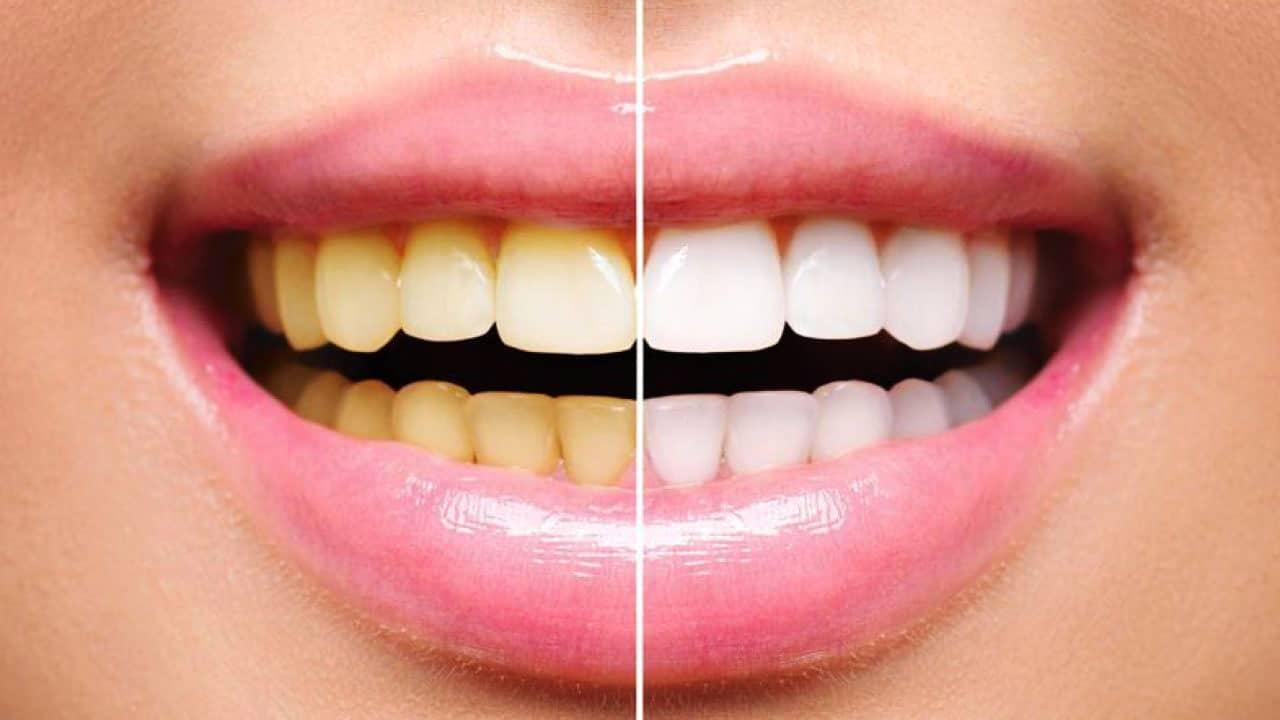 Tandblegning med personlige blegeskinner