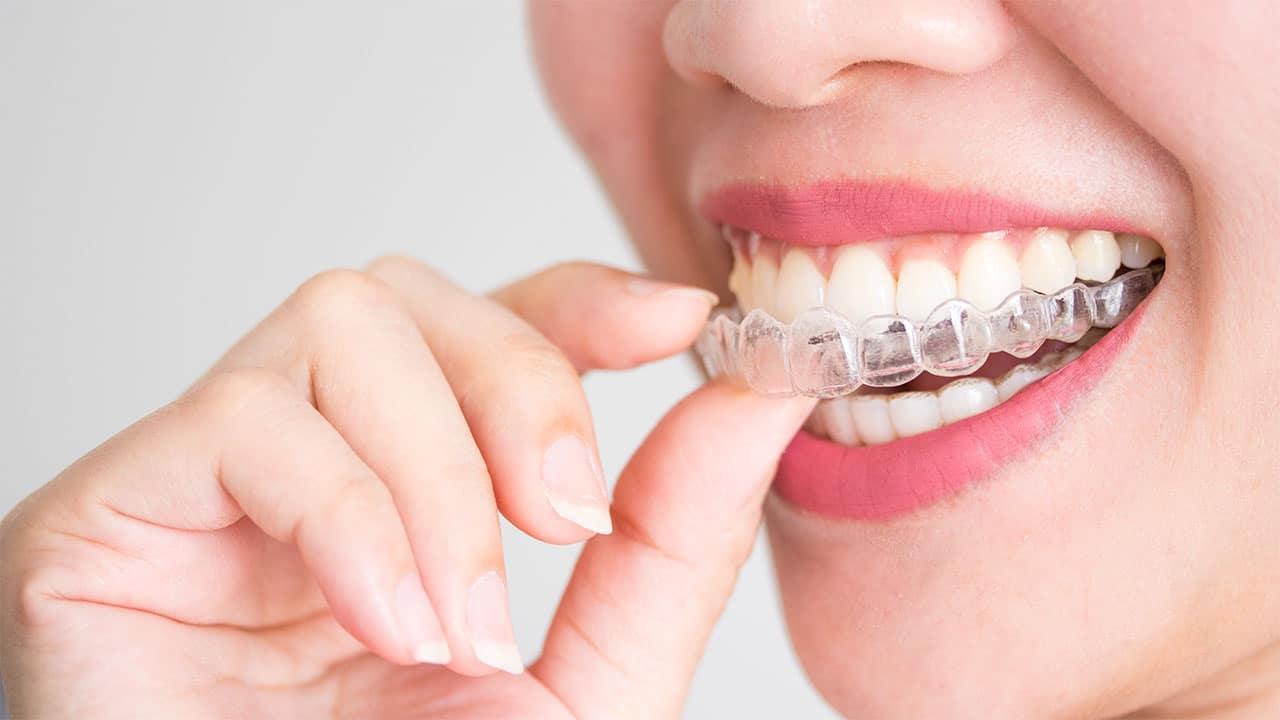 Usynlig tandregulering med Invisalign